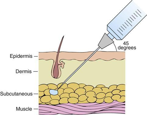 A example of a sub dermal layers and a needle injecting into the Subcutaneus layer