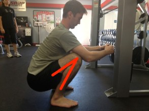 Toddler knee flexion lines