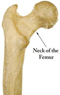 femoral neck