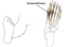 sesamoid-bones-hallux-valgus