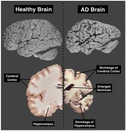https://knowingneurons.files.wordpress.com/2012/11/brainatrophy_600.jpg?w=610