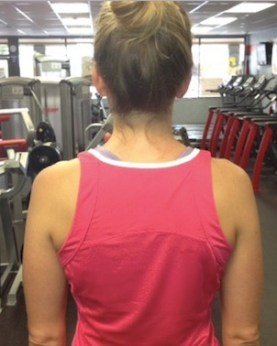 shoulders before drooping causing pain