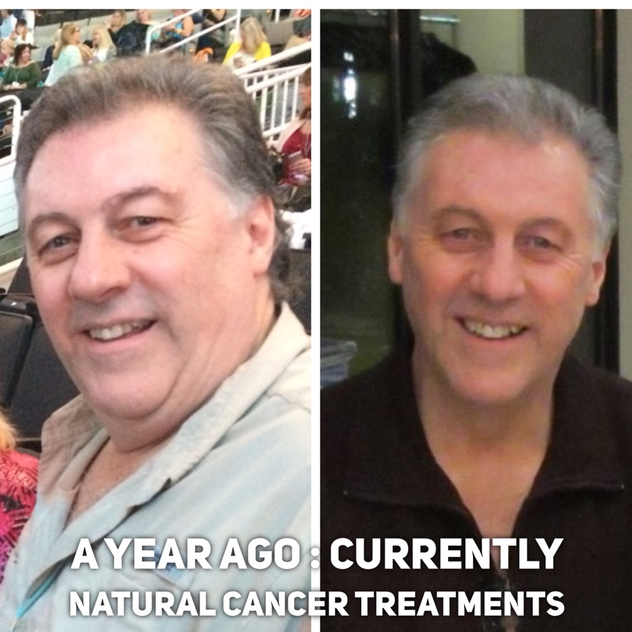Brent Wallace • Juice Plus Rep: Before & After Cancer