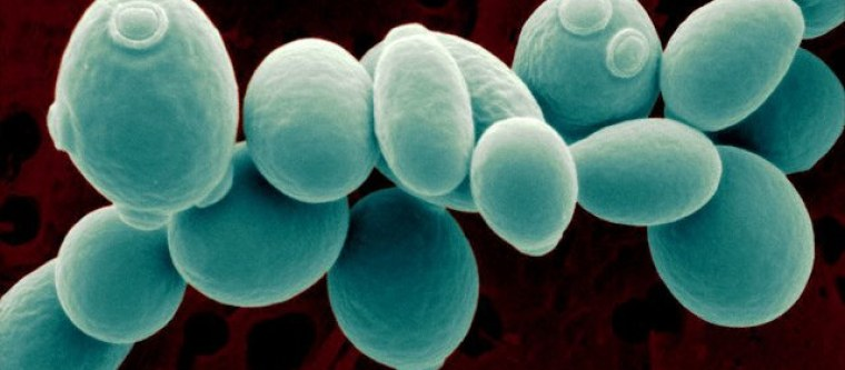 Strain of yeast under a microscope.