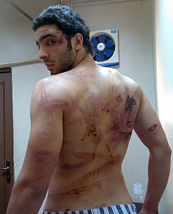 Ramy Essam after being tortured