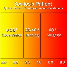Scoliosis Treatments, Doctors Typical Recommendations