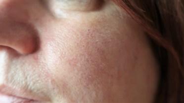 laser-treatment-rosacea