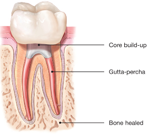 Illustration of the healin process following root canal therapy - Mississauga Dentist - Bristol Dental