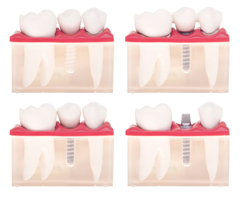 Dental Implants - Mississauga Dentist - Bristol Dental
