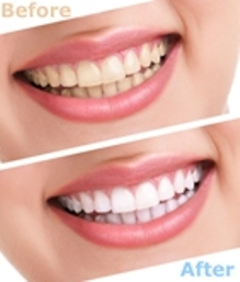 teeth before and after treatment - Mississauga Dentist - Bristol Dental