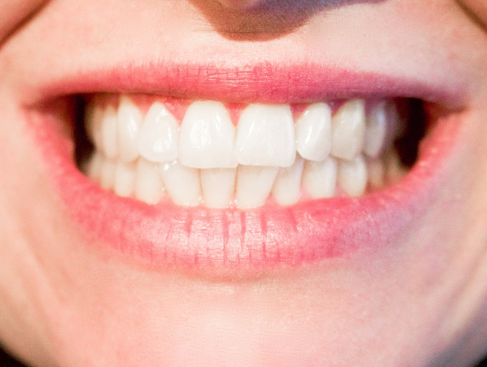 A picture of a set of white teeth - Mississauga Dentist - Bristol Dental