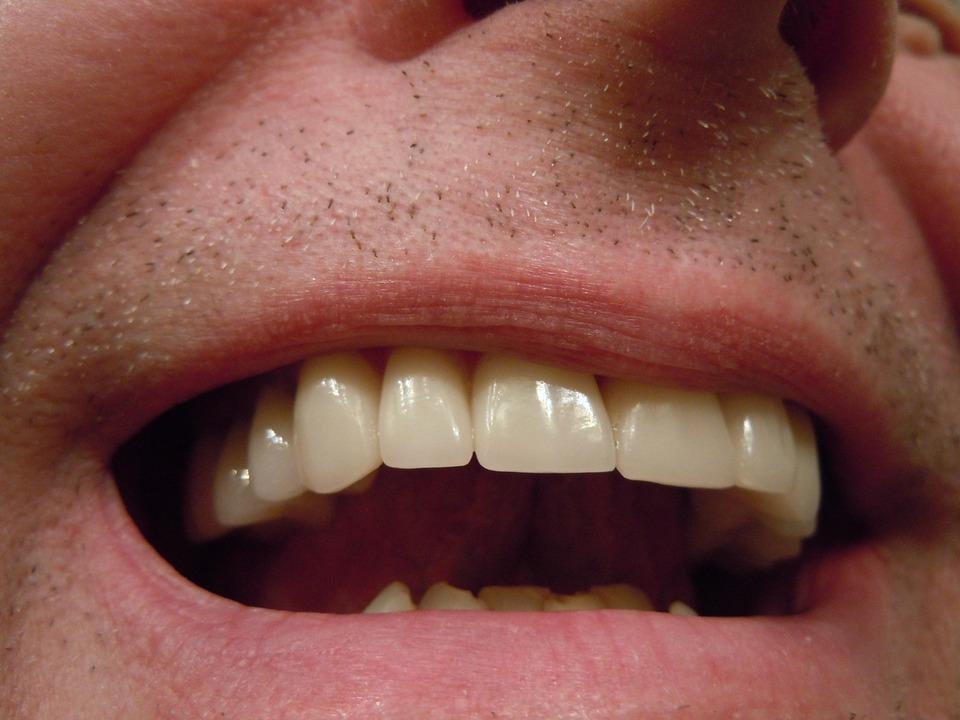 A set of teeth - Mississauga Dentist - Bristol Dental