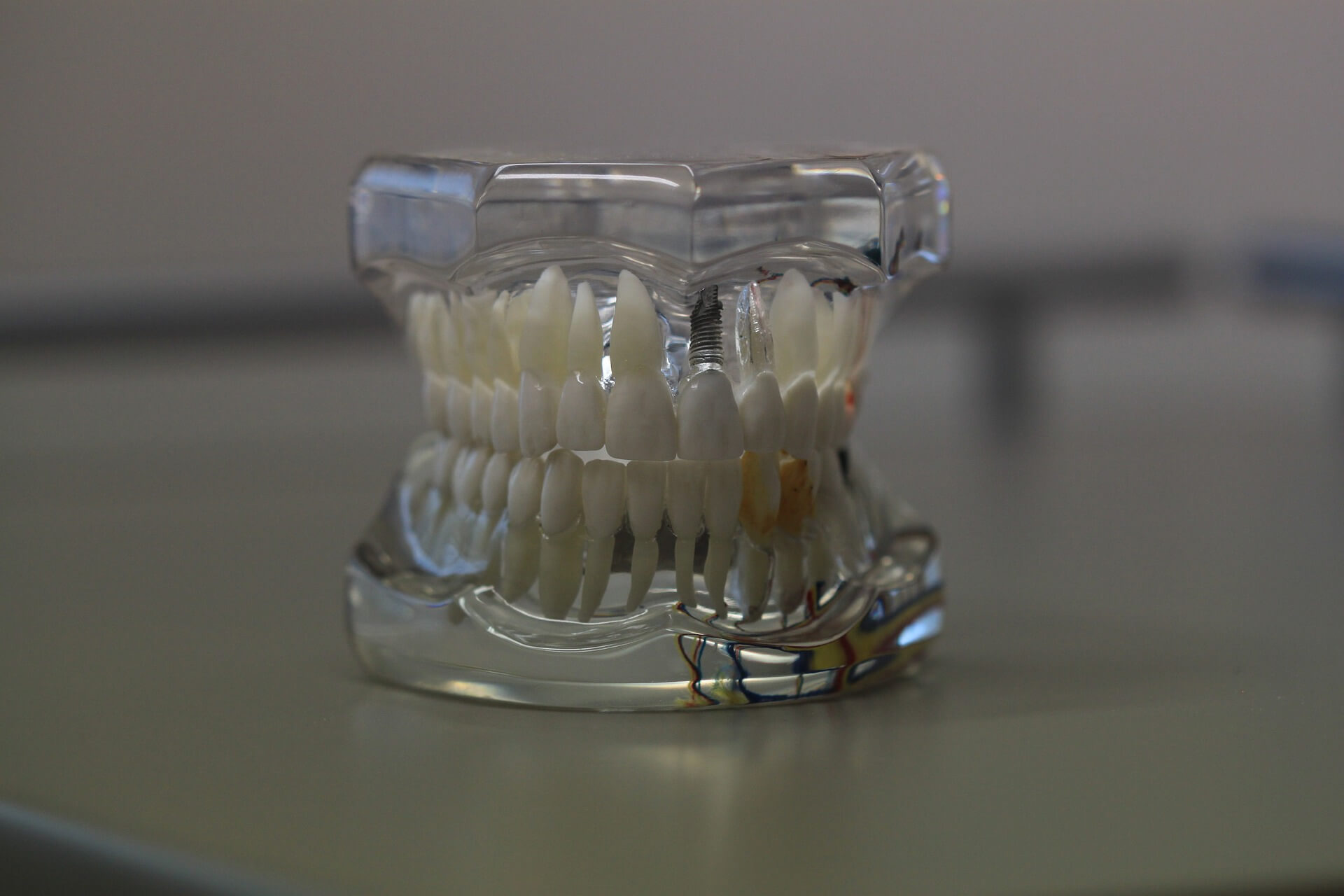Model teeth - Mississauga Dentist - Bristol Dental
