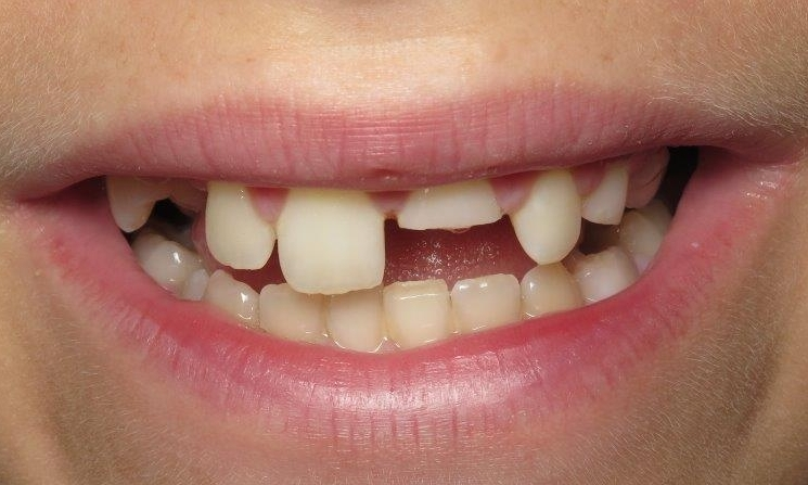cracked front tooth repair cost