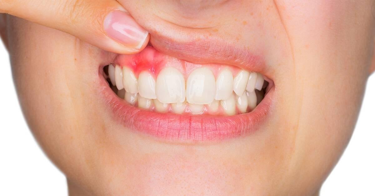 Gum disease mississauga dentist - Bristol Dental Clinic