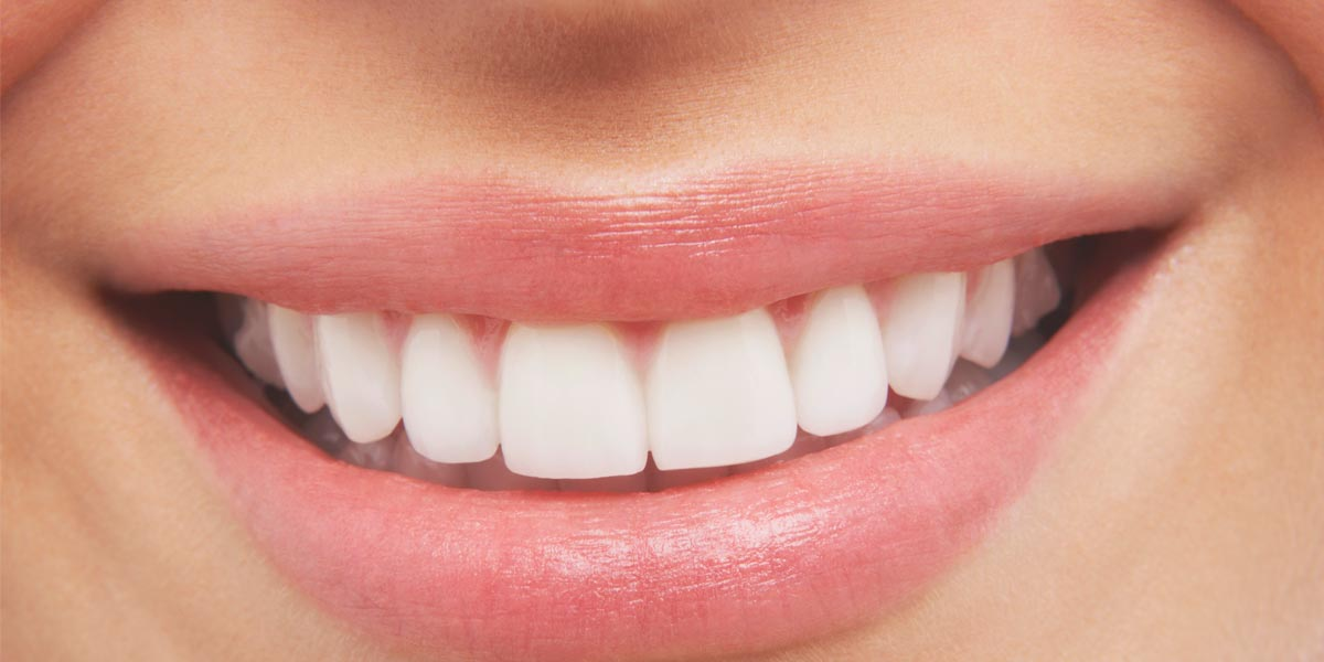 6 Effective Teeth Whitening Products To Brighten Your Day