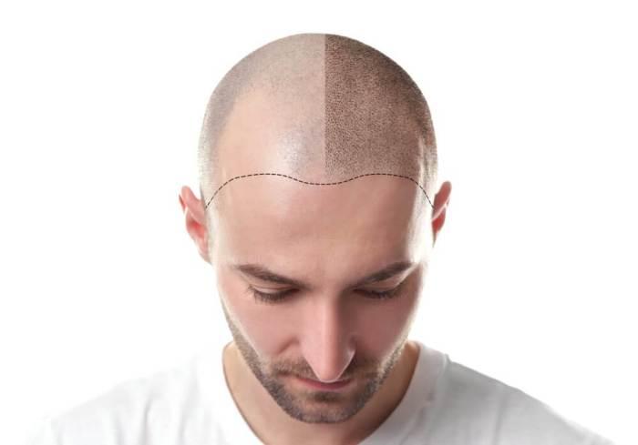 Hairloss Blocker efeitos depois