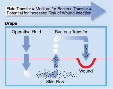 A sterile drape should be waterproof and impervious to strikethrough. A drape that allows fluid transfer, and thus bacteria transfer, compromises the sterile field, which increases the risk of wound infection. That is why a drape that is impervious to liquid strikethrough is so important.