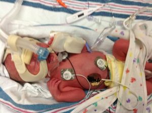 World Prematurity Day Reid