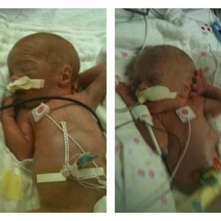 World Prematurity Awareness – NICU & RSV