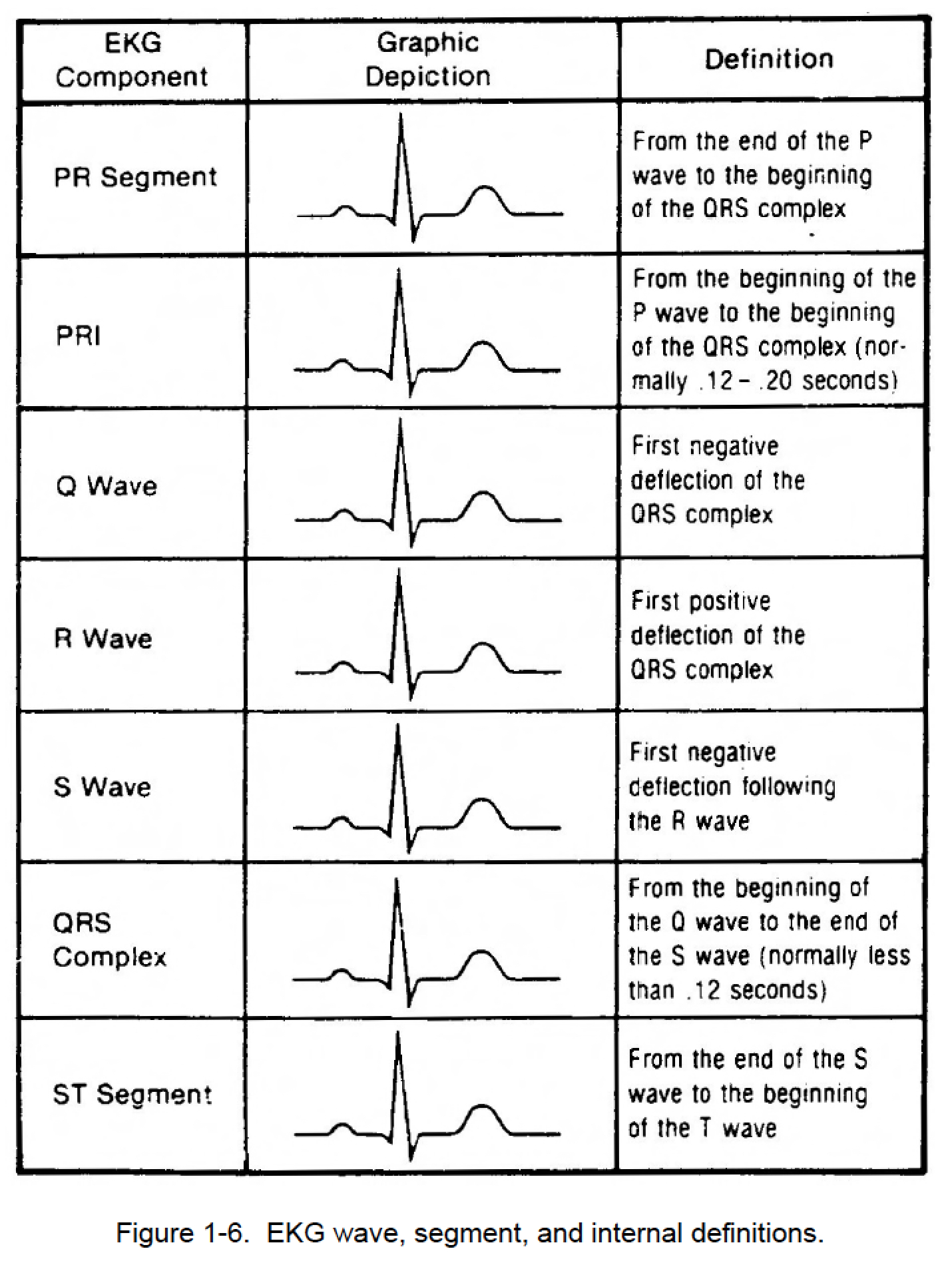 Figure 1 6 Ekg Wave Segment And Internal Definitions