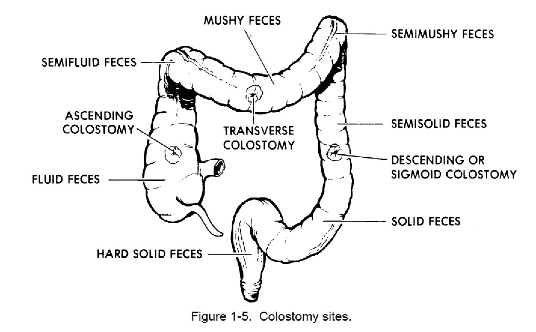 1 43 Colostomy