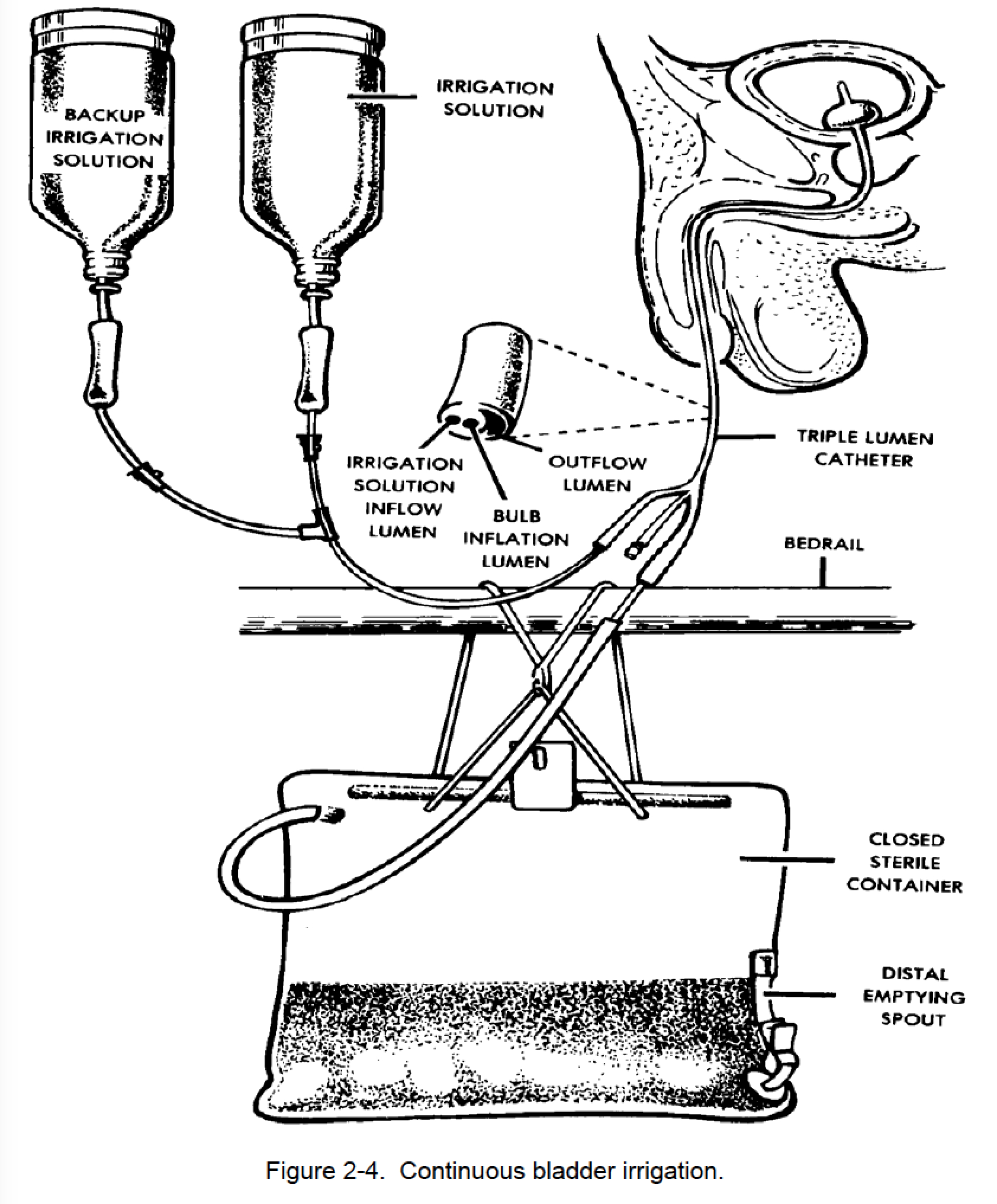2 23 Continuous Bladder Irrigation