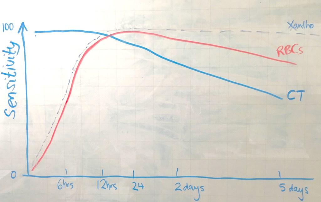 Sensitivity of Ix for SAH vs Time