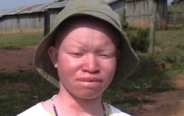 I was denied entry to 5 schools-Albino student
