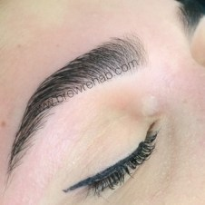 Brow Rehab Miami