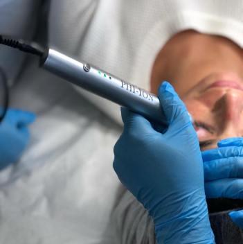 Plasma Pen Skin Tightening Treatment or Fibroblast Therapy