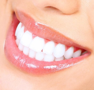 white teeth pic