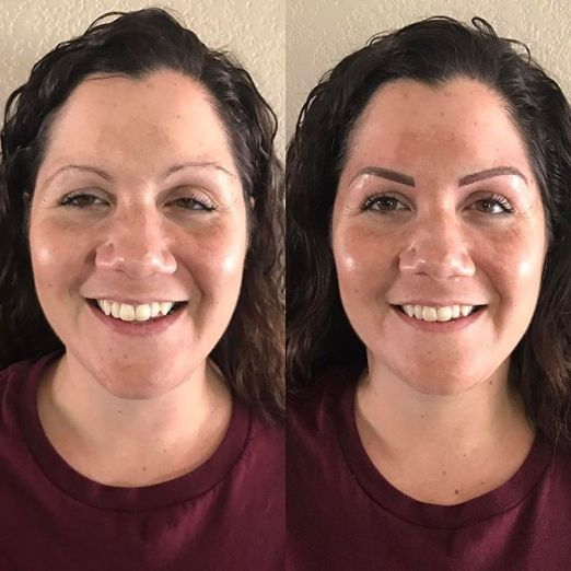 kara front before after scar microblading