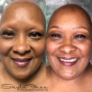 Before and after microblading on a client with alopecia by Bliss Beauty & Brow Boutique