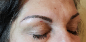 microblading before & after pics 00134