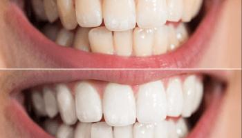 teeth Whitening tiktok