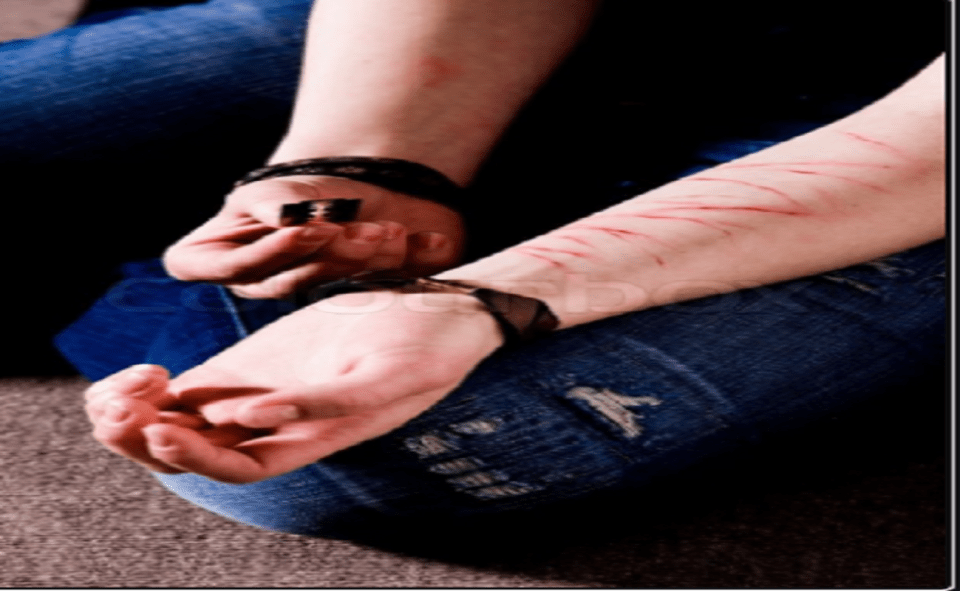 Image Of Girl Cuts Her Arm On TikTok Video