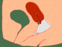 Menstrual_cup_pos1