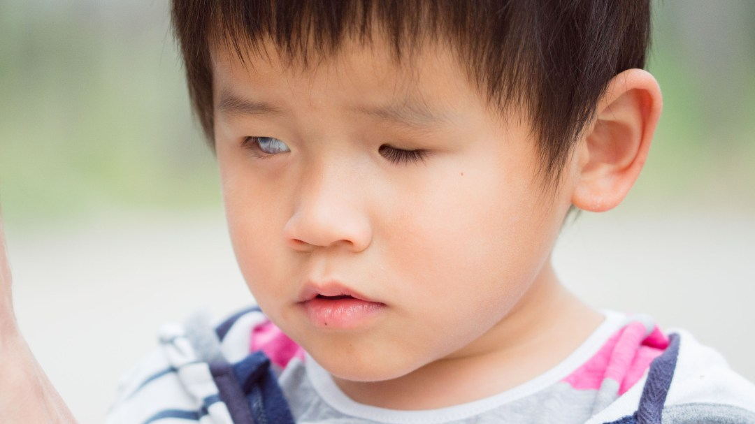 Photo of a blind child living at the Bethel China foster care home