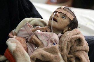 YEMEN: UN Whitewashing Saudi Coalition War Crimes and International Human Rights Violations.