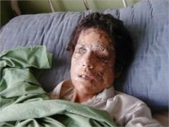 Cluster bomb victim Afghanistan