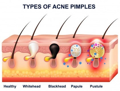 different types of pimples
