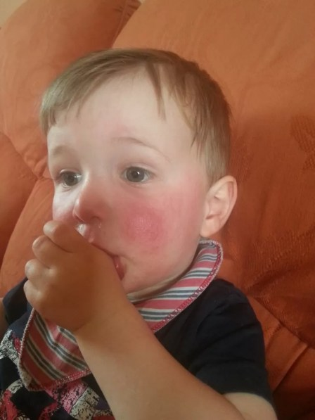 slapped cheek