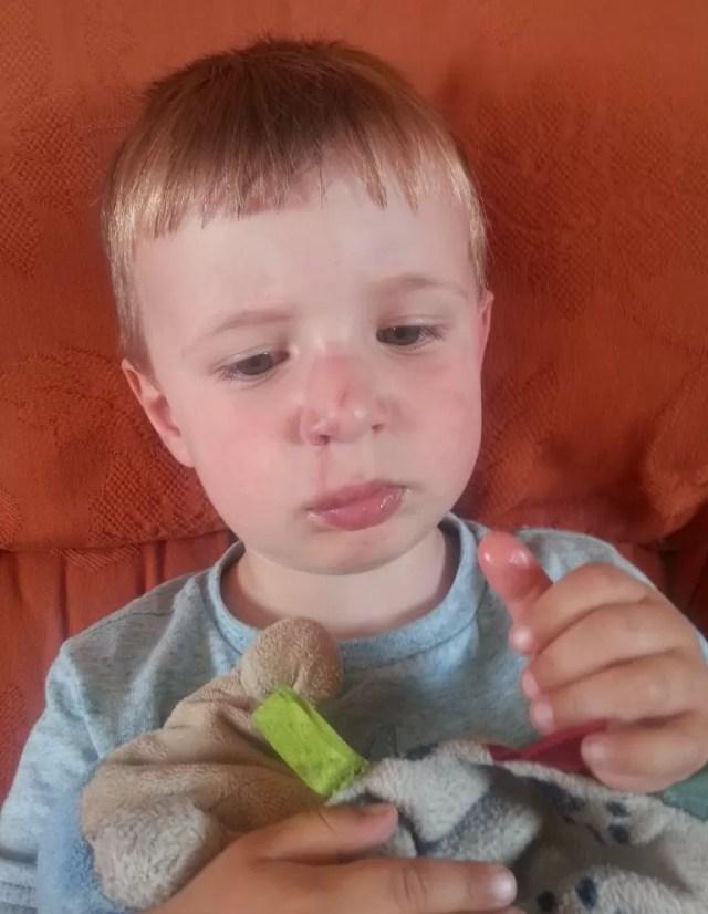 toddler swollen nose