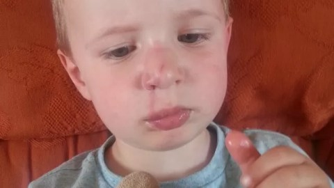 bashed up nose and face