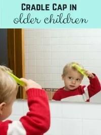 cradle cap older children