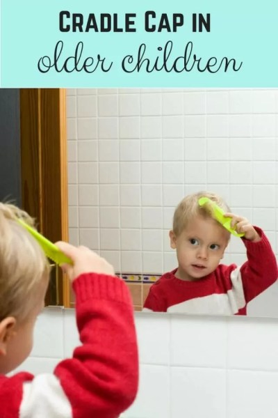 cradle cap in older children - Bubbablue and me