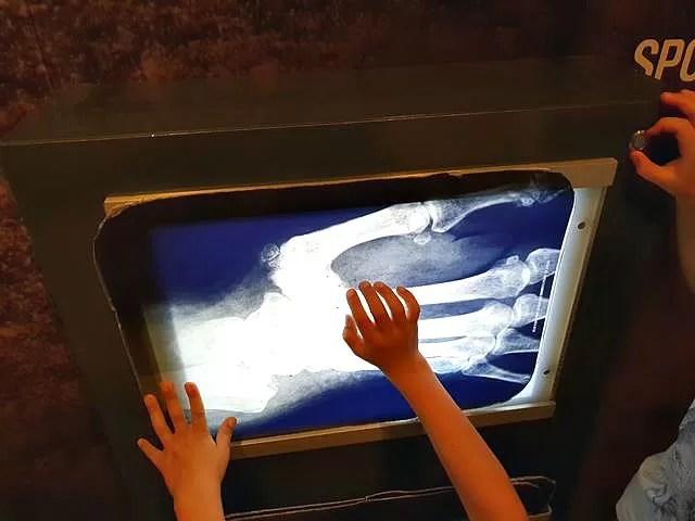 football museum x rays