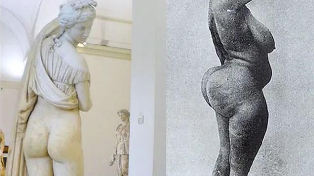 La Venus de las nalgas bellas o las curvas de una mujer ''esteatopígica'' ¿Simple cuestión de gustos?