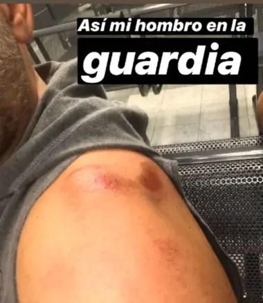 El director de Sex expuso sus heridas en las historias de Instagram